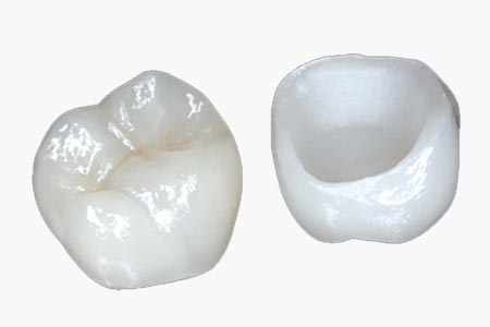 Crowns and bridges for damaged teeth