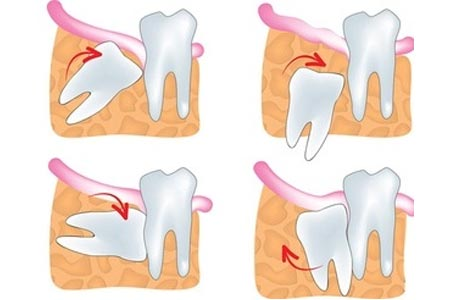 Oral Surgical Services