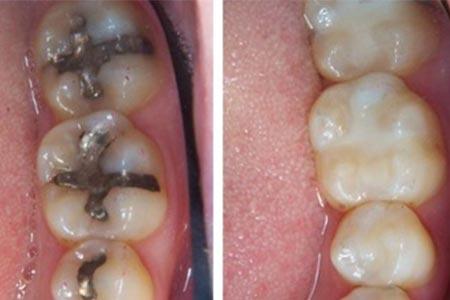 White Fillings versus amalgam fillings