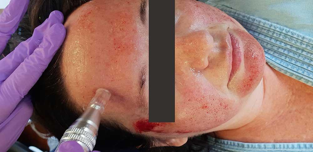 Microneedling treatment at Fendalton Dental Surgery