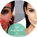 Vampire facial made popular by Kim Kardashian